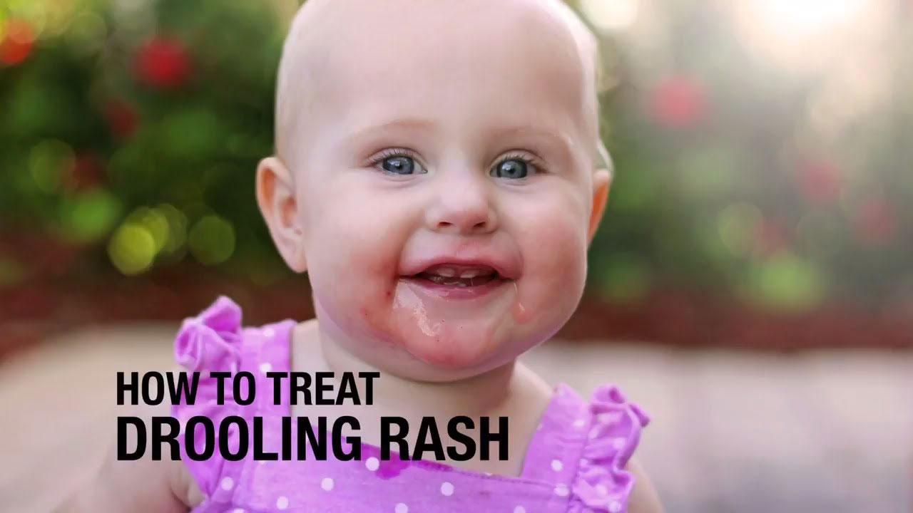 Baby drool Rash