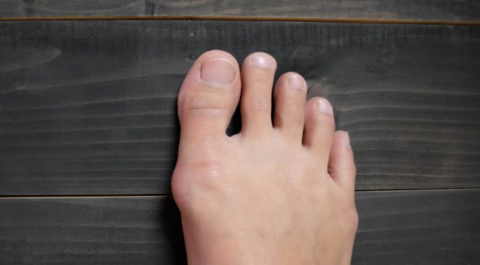How to get rid of bunions?