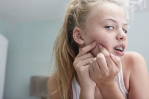 What causes teenage acne